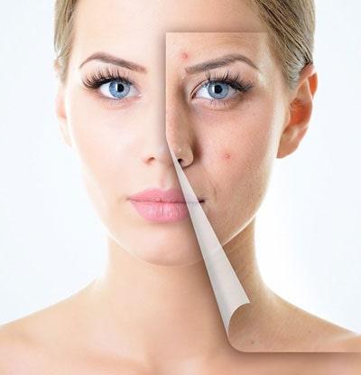 تاثیر میکرونیدلینگ در جوانسازی پوست و ترمیم پوست صورت و بدن
