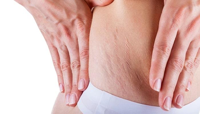 درمان ترک های پوستی با میکرونیدلینگ ، درمان استرچ مارک با دستگاه آمیامد